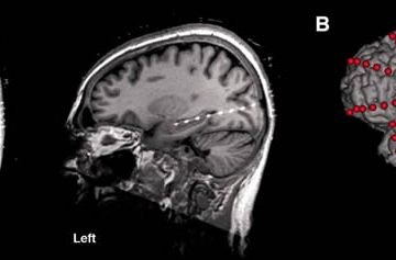 Image shows brain scans with the electrodes implanted.