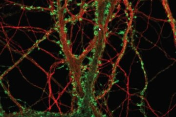 Image shows hippocampal neurons.