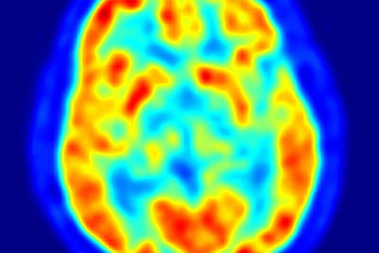 Image shows a PET scan of a human brain.