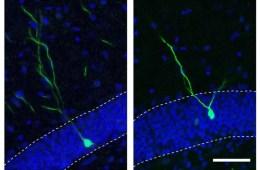 Image shows a neuron.