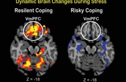 Image shows brain scans with the vmPFC highlighted.