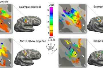 Image shows brain maps.