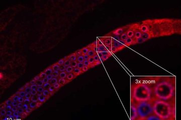 Image shows an idolated germ line of a C. elegans worm.