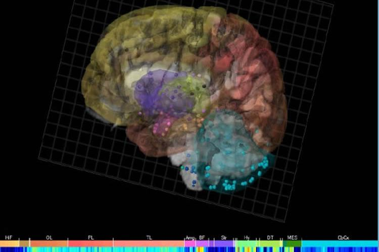 Image shows neuroglobin expression in the brain.