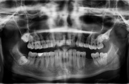 Image shows a tooth xray with one tooth missing.