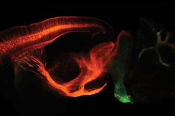 Image shows a section of a mouse brain.