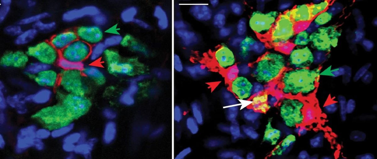Image shows neurons emerging from precursor cells.