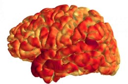Image shows the cerebral cortex.