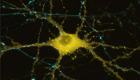 A human neuron is shown.
