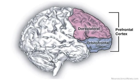 A brain drawing with the prefrontal cortex highlighted.