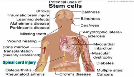 Image of a human with sites labeled that could benefit from potential uses of stem cells.