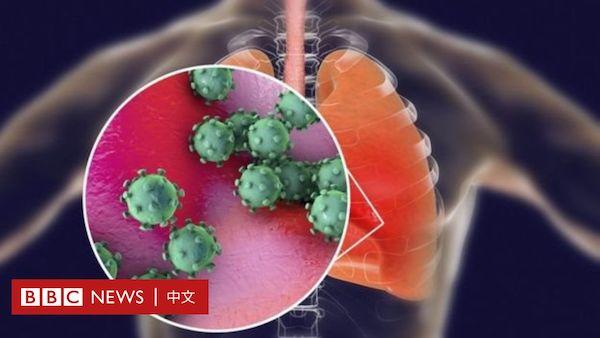 新冠病毒特性像流感易傳染,像SARS據殺傷力。 圖片來源:BBC