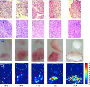 Comparison between the normal cervical tissue and tissue lesion for different stages. From top to bottom are the pathological images for the normal cervical tissue (first row) and tissue lesion (second row), the photo image (third row) and corresponding DMAP images (fourth row) of representative experiments respectively. Margins of the normal tissue (green) and cervical lesion (red) are indicated in the photo and DAMP images. The scale bar for the histological images represents 0.1 mm, and that for the photo and DMAP images is 1 mm. CREDIT: Biomedical Optics Express