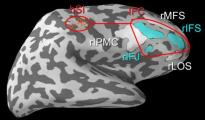 Inattention in the brain To study how the brain purposefully ignores sensory stimuli, researchers looked at brainwaves connecting the somatosensory cortex (hSI) to the right inferior frontal cortex (IFC). White regions were experimental controls. Image credit: Brown University