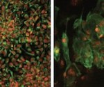 Salk researchers have generated disease-free stem cells from patients with mitochondrial disease that can be converted into any cell type including neuronal progenitors (left) or heart cells (right). These could potentially be used for future transplantation into patients.  Image: Courtesy of the Salk Institute for Biological Studies