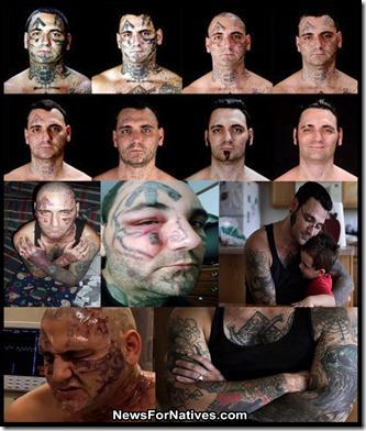 bryon widner nazi tattoo removal