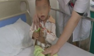 2BAC60C000000578-3211356-Pain_A_toddler_from_southeast_China_has_been_hospitalised_after_-a-4_1440590238572-300x246