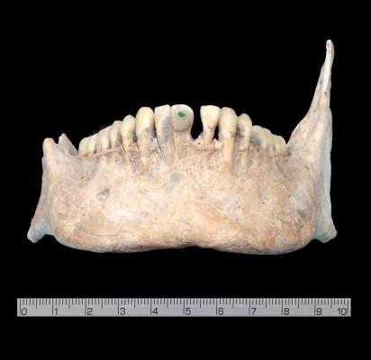 Zeichen herausragender sozialer Stellung: Wissenschaftler der Universität Bonn entdeckten an einigen Schädeln aus dem Massengrab in der früheren Maya-Stadt Uxul (Mexiko) Einlagen aus Jade an den Schneidezähnen. Sie waren ein beliebter Körperschmuck bei den vorspanischen Maya, der aufgrund der Seltenheit des Rohstoffs sozial hochgestellten Personen vorbehalten war. Mit Steinwerkzeugen wurden kleine Aushöhlungen in den Zahn gebohrt und mit einem Stück Jade passgenau ausgefüllt. (c) Foto: Nicolaus Seefeld/Uni Bonn