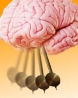 Nervenzellen im Gehirn ticken enorm schnell. Foto: Stefan Hallermann