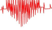 397960-388793-363777-heart-attack
