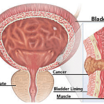 Molecular Analysis of Bladder Cancer Tumors Identifies Opportunities for Therapeutic Intervention