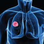 Researchers Pinpoint Lung Cancer Biomarker for Early Disease Detection