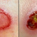 What is MRSA Staph Infection? Symptoms and Treatment