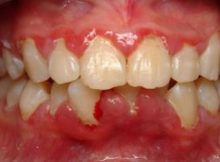how-to-reduce-gum-swelling-quickly-324x235