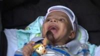 """Bebê com grave problema cardíaco contradiz diagnóstico e é considerado """"milagre""""; Entenda"""