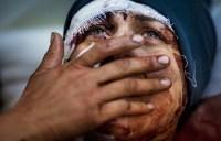 Muçulmano que agredia a esposa cristã se converte após perder os movimentos e sonhar com Jesus