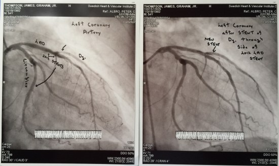 Feb stent before and after
