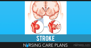 Stroke-Nursing-Care-plans
