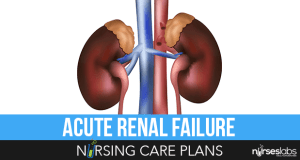Acute-Renal-Failure-Nursing-Care-Plans