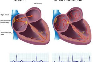 atrial fibrillation atrial fibrillation is described as a quivering or
