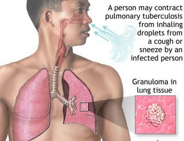 Types of Pulmonary Tuberculosis Disease with Nursing Intervention