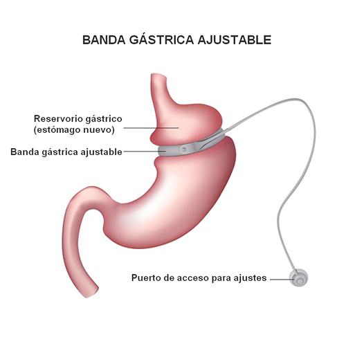 BANDA GASTRICA AJUSTABLE