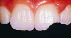 broken-chipped-tooth