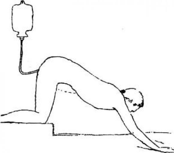 Мои рекомендации, как правильно провести очищение кишечника с помощью клизмы