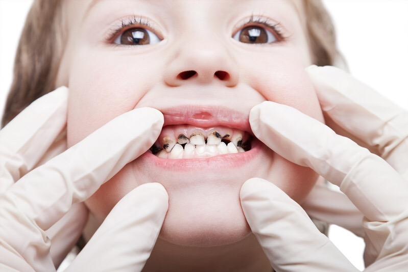karies-molochnyh-zubov-u-rebenka-5