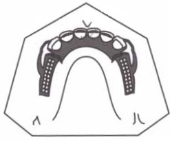 chapeado lingual ou placa lingual