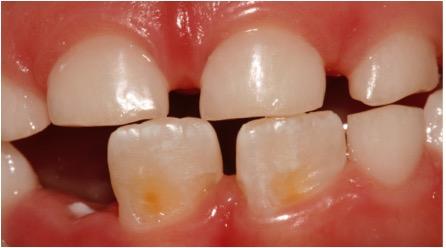 Desgastes severos nos incisivos superiores e inferiores decíduos e guia incisal dos incisivos centrais inferiores já em desgaste por atrição.