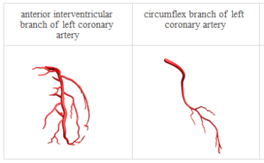 Anatomy_Heart arterial