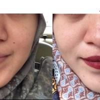 Perawatan Wajah di Bamed Skin Care