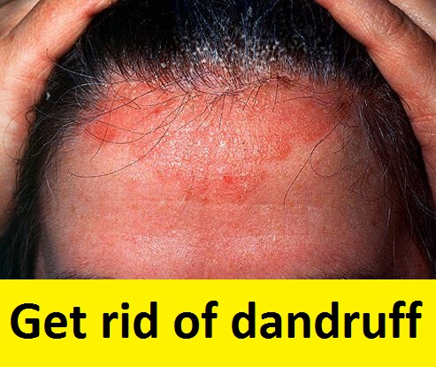 get-rid-of-dandruff-with-this-ingredient