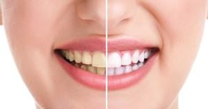 Teeth-13