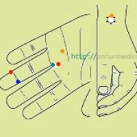 Stones (kidney), renal calculus, urolithiasis