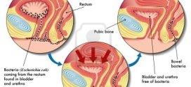 La cistitis intersticial o síndrome de vejiga dolorosa