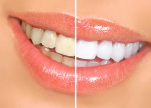 歯,ホワイトニング
