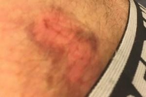 bruises LV
