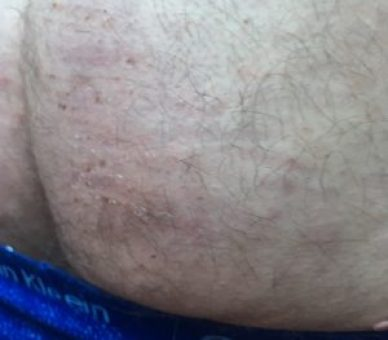old bruises
